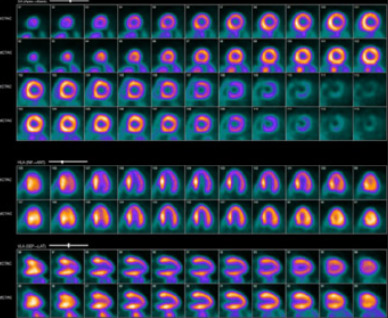 Corridor 4DM SPECT images in a PACS